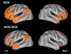 Autism Study Reveals How Genetic Changes Rewire the Brain