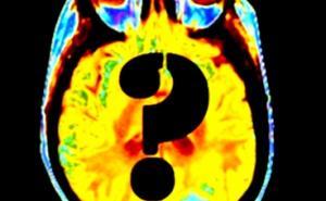15年来大脑研究或付诸东流?